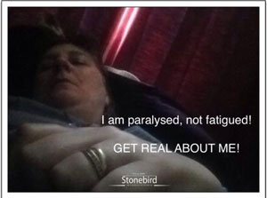 a poster saying get real about ME, it is paralysis not fatigue