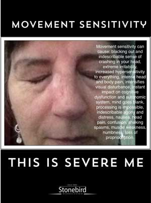 a poster listing the many symptoms of movement sensitivity in Severe ME
